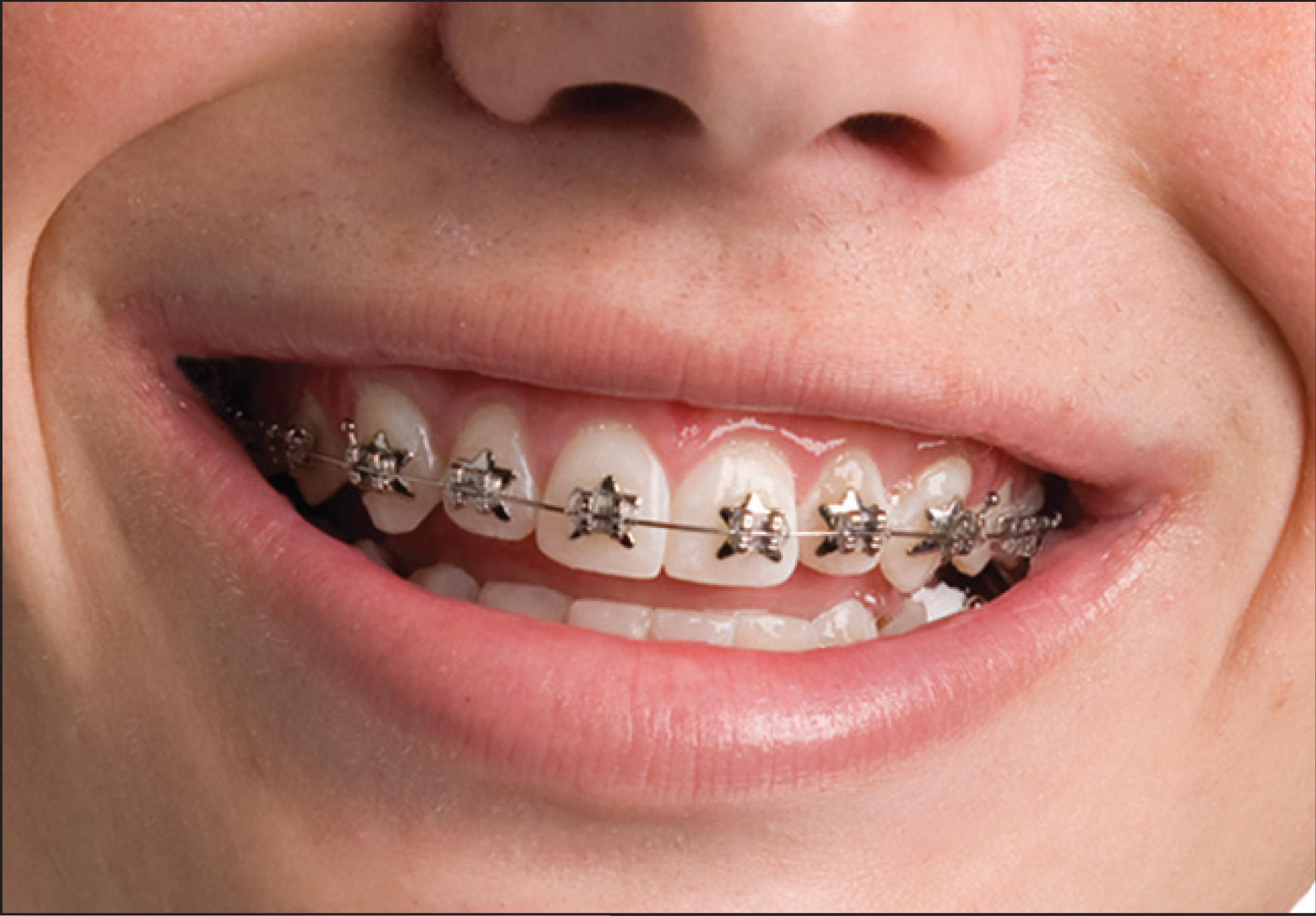Wildsmiles Braces Dunegan Orthodontics
